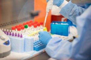 В Офисе президента сообщили, что до конца дня ПЦР-тесты доставят во все лаборатории