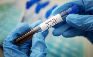 В Минздраве сообщили, где начнут ИФА-тестирование на антитела к COVID-19